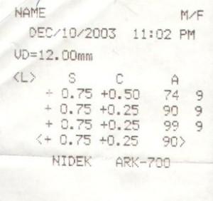 Receipt of IntraOcular Pressure measurements