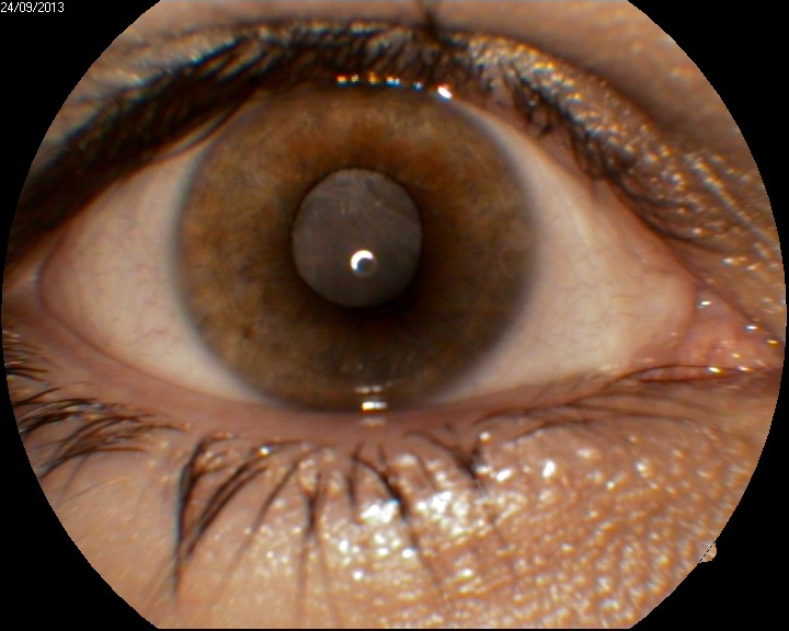 Right Eye complicated cataract and older retinal detachment
