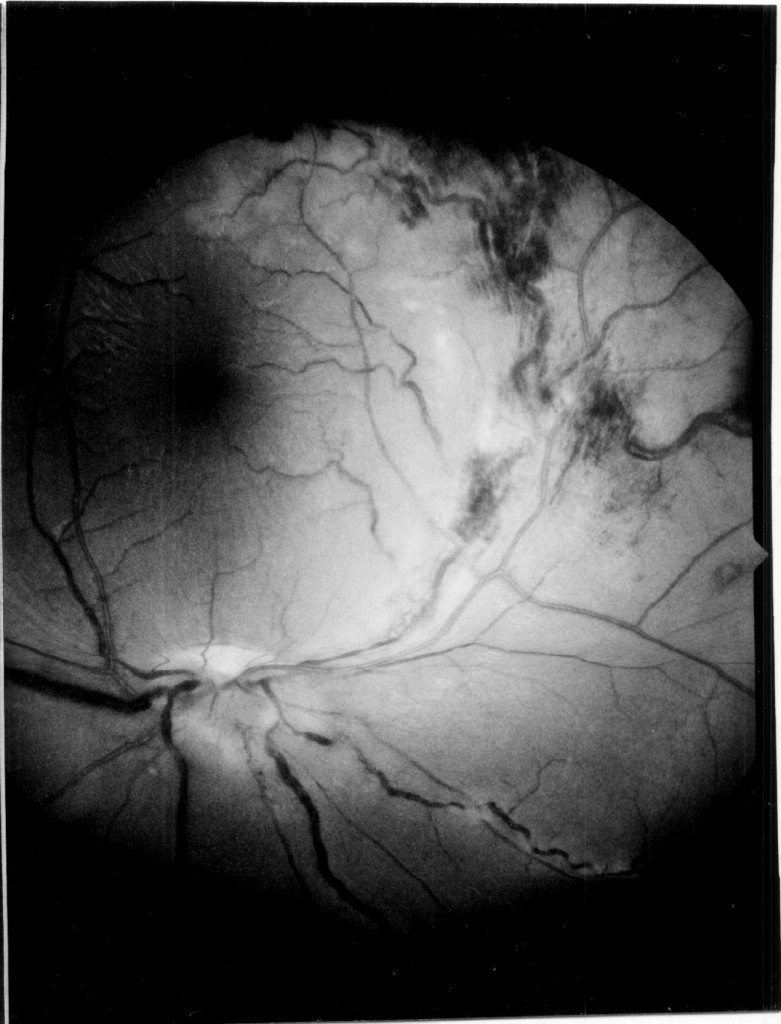 Right Eye Fundus 5