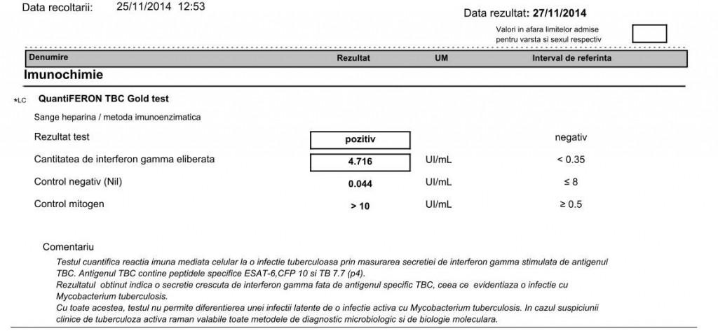QuantiFERON TBC Gold Test 20141127