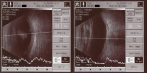 Ecography scan for the Right Eye