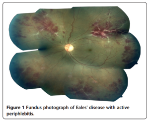 Eye fundus photograph of Eales disease with active periphlebitis